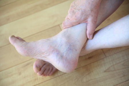 50161251 An Older Man With Prominent Veins On His Foot