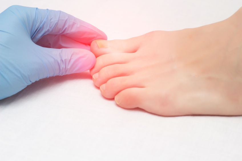 Doctor Examines A Sore Toe Infected With Fungal Infection, Close Up, Onychomycosis, Medical