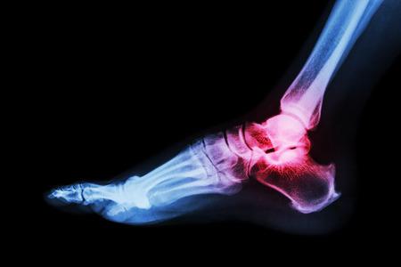 32505827 Arthritis At Ankle Joint (gout , Rheumatoid Arthritis)