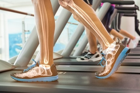 42560268 Digital Composite Of Highlighted Bones Of Man On Treadmill