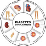 Diabetes Complications