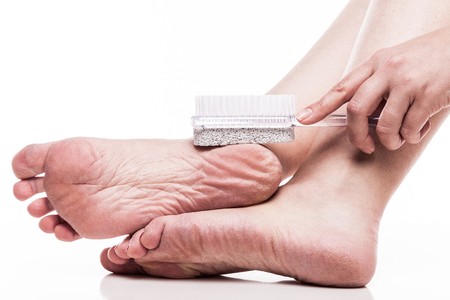 89358841 S Dry Feet Scaly Woman File