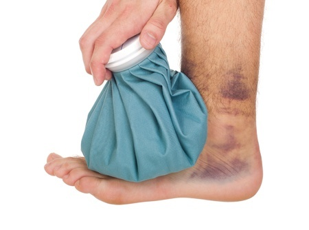 9650036 S Sprained Ankle Male Ice Pack Foot Bruise