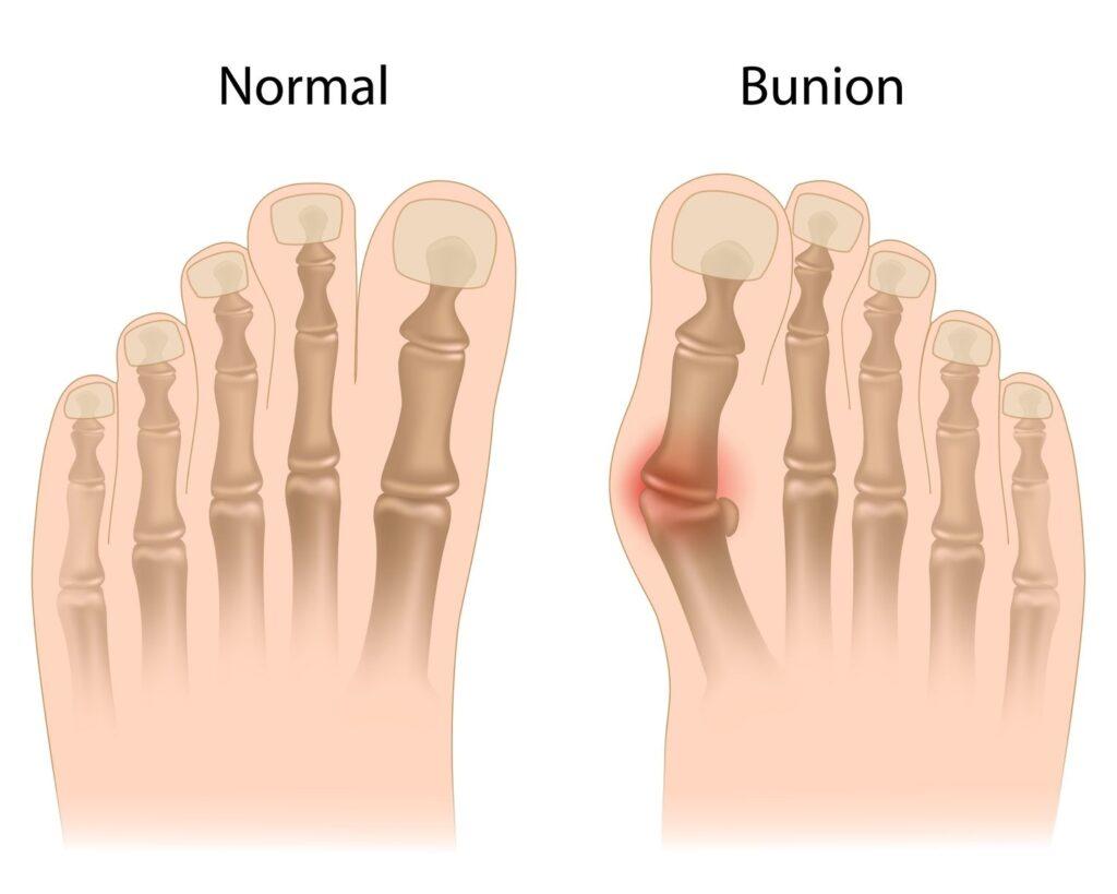 16911782 L Bunion Muscles Feet Bones