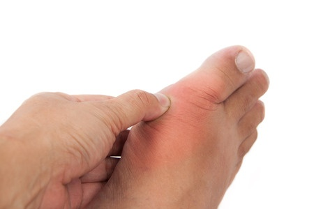 34515085 Finger Pressing On Gout Inflamed Part Of Foot