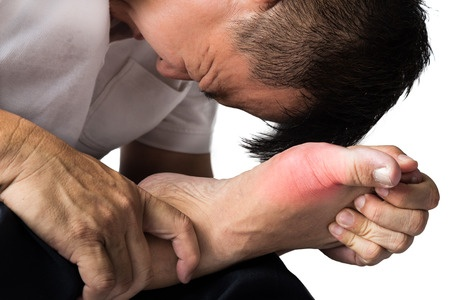 34515493 Man With Painful And Swollen Right Foot Due To Gout Inflammation