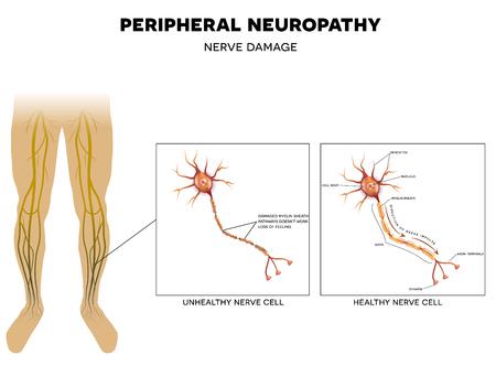 48215125 S Diabetes Peripheral Neuropathy Nerves Damage Legs Feet
