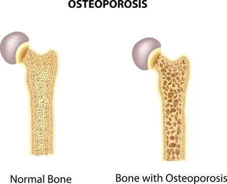 53334715 S Osteoporosis Bone Feet