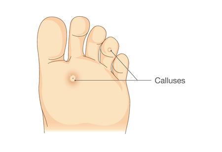 69011226 S Callus Foot Sketch